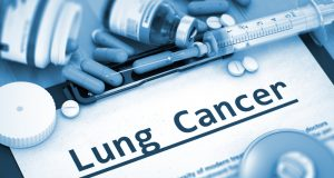 How to treat non-small lung cancer? Scientists concluded that Molecular targeted therapy and immunotherapy are the most advanced