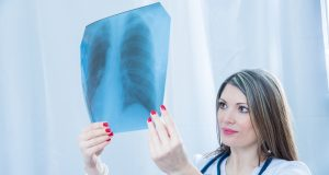 Early signs and symptioms of lung cancer