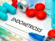 The anti-endometriosis effects of ginsenoside PPD