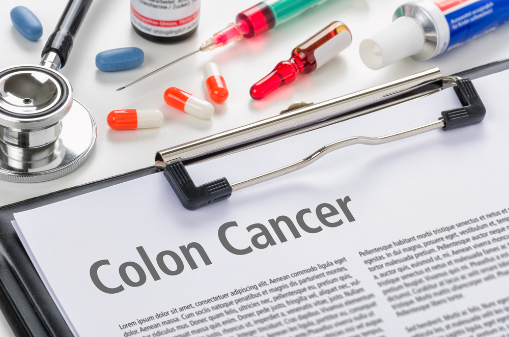 Colorectal cancer: symptoms and prevention