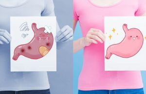 The progression from gastritis to gastric cancer and prevention measures