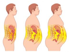 Want to reduce cancer risk? Reduce your excess weight now!